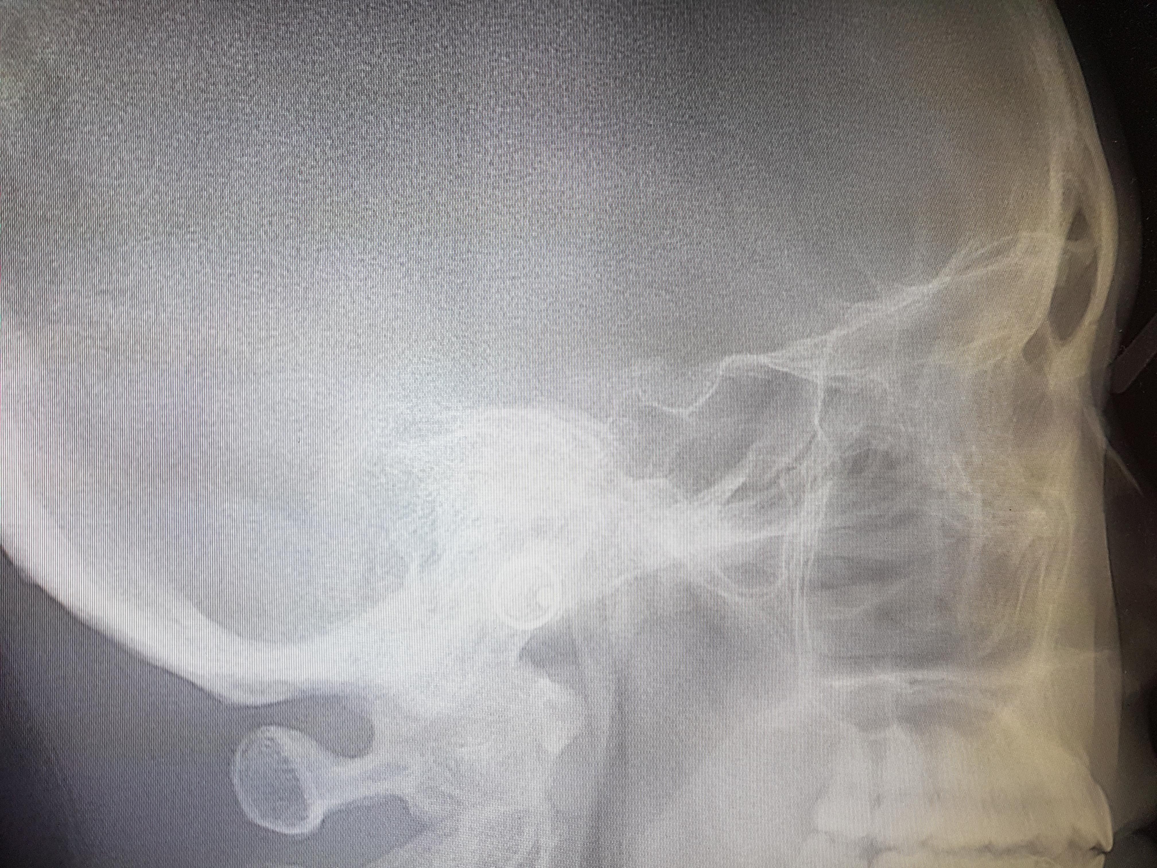 rtg czaszki