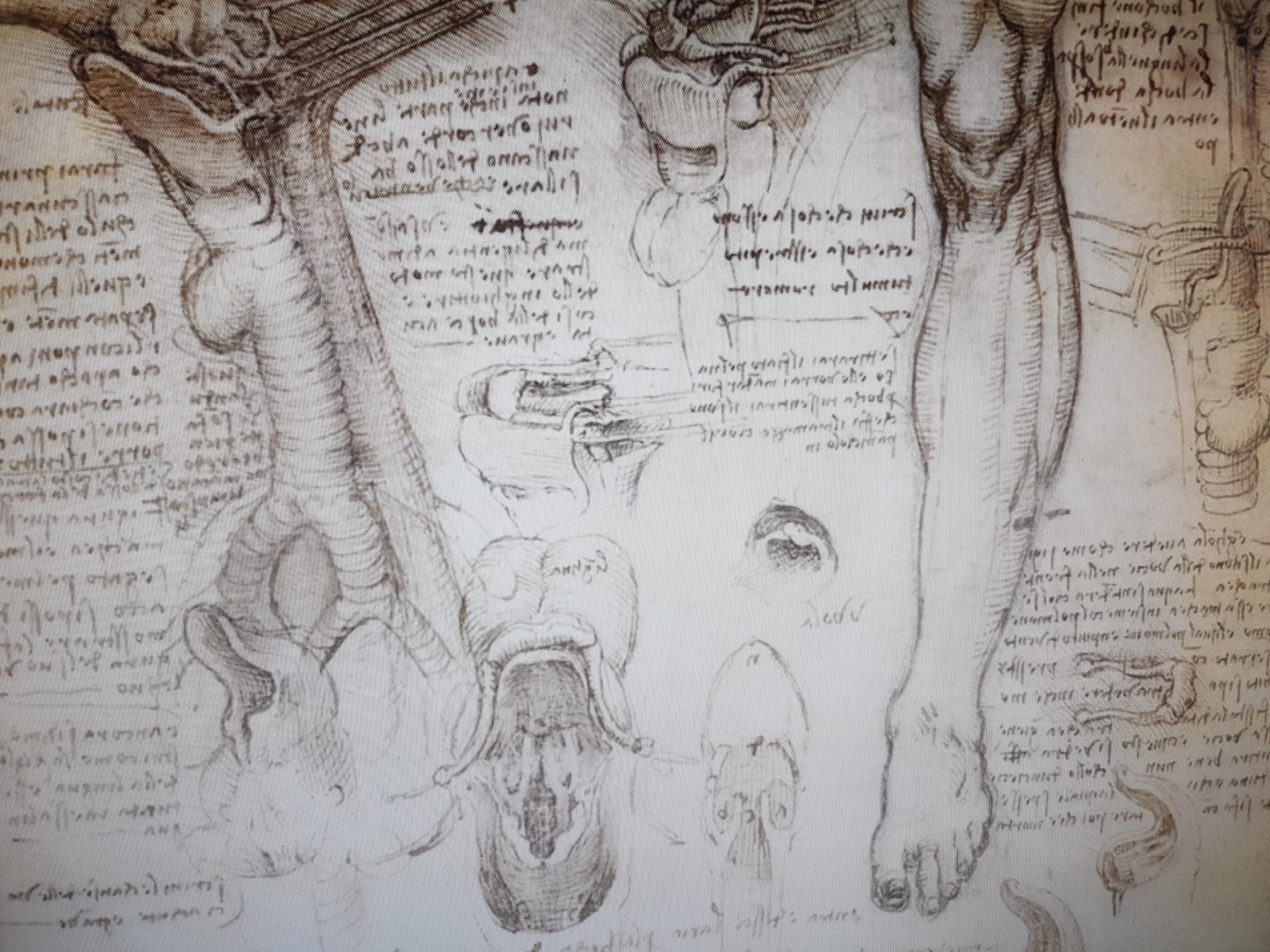 szkic neurochirurgiczny